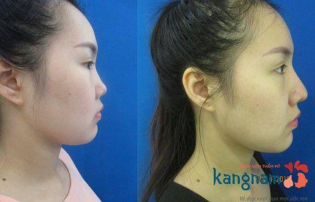nâng mũi có ảnh hưởng đến khứu giác không-6