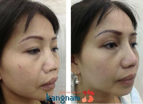 nâng mũi có ảnh hưởng đến khứu giác không-7