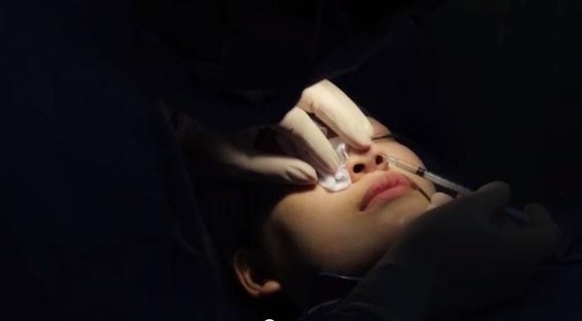 Phẫu thuật nâng mũi có đau không?