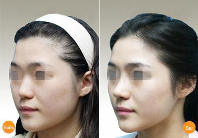 Phương pháp nâng mũi đẹp toàn diện 2