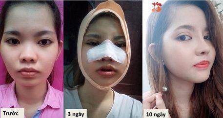 Thời gian phục hồi sau khi nâng mũi bọc sụn-1