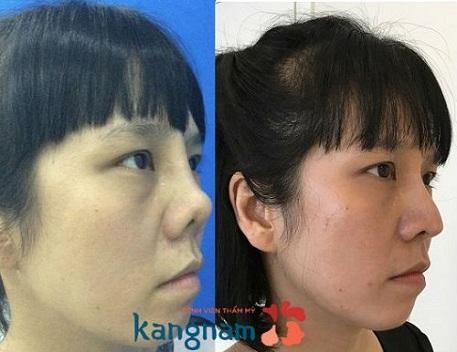 khắc phục mũi hỏng sau nâng an toàn-5