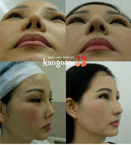 khắc phục mũi hỏng sau nâng an toàn-6