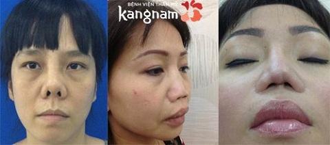 khắc phục mũi hỏng sau nâng an toàn-1