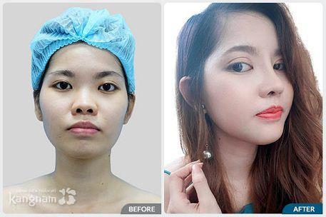 Khác biệt sau chỉnh sửa mũi tẹt hếch tại Kangnam