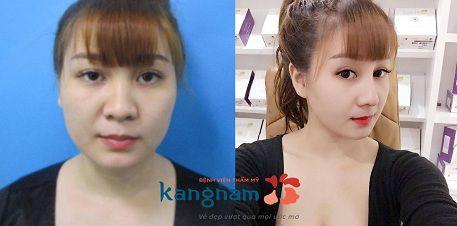 Gương mặt khác biệt sau chỉnh sửa mũi hếch tẹt tại Kangnam