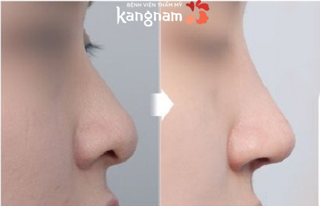 Nâng mũi không phẫu thuật có hại không-4