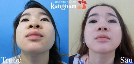 Kết quả cuộn cánh mũi như thế nào?2
