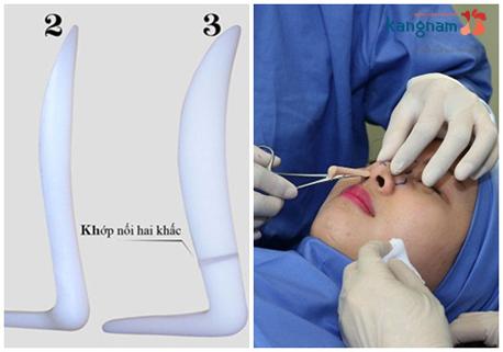 nâng mũi bằng sụn nhân tạo 1