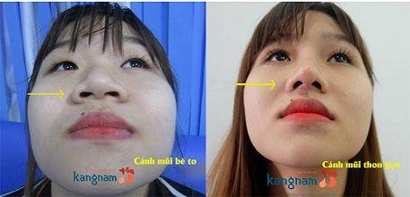 Kết quả thu gọn cánh mũi không phẫu thuật