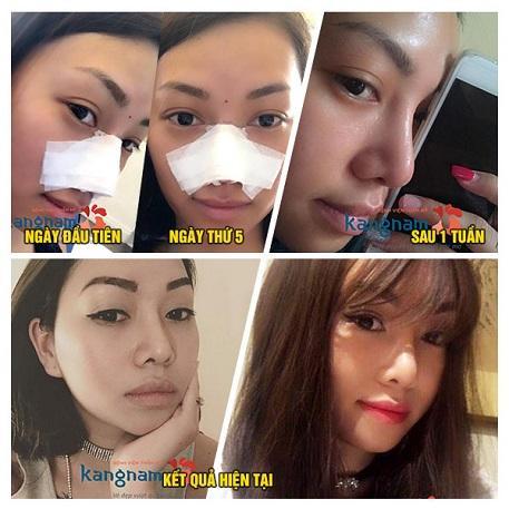 Kết quả phẫu thuật nâng mũi an toàn tại Kangnam