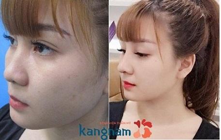 Kết quả chỉnh sửa nâng mũi an toàn bằng phương pháp S line