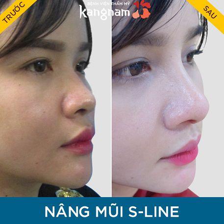 tại sao nâng mũi s line tại kangnam lại hút khách-3