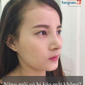 Nâng mũi có bị kéo mắt không? – Phỏng vấn chuyên gia