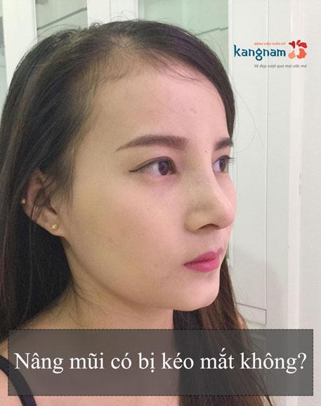nang-mui-co-bi-keo-mat-khong-1
