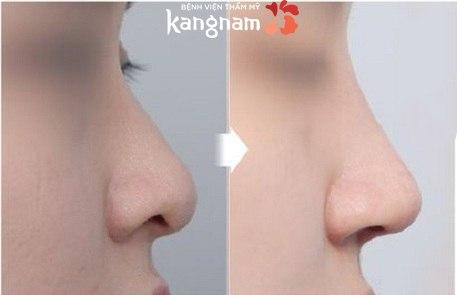 Nâng mũi không phẫu thuật giữ được bao lâu -3