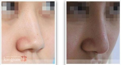 Nâng mũi không phẫu thuật giữ được bao lâu -2