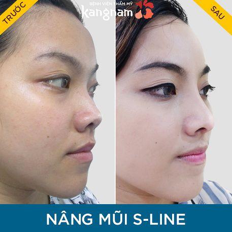 phẫu thuật nâng mũi s line như thế nào-6
