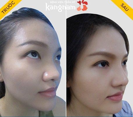 phẫu thuật nâng mũi s line như thế nào-7
