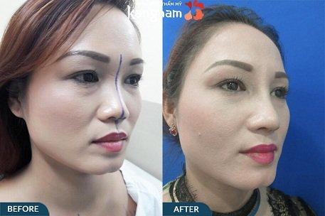 phẫu thuật nâng mũi s line như thế nào-8