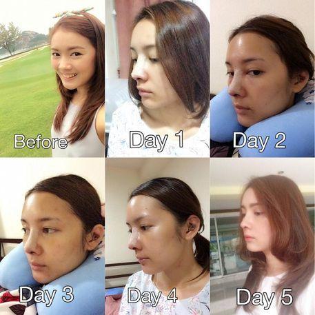 Phẫu thuật nâng mũi bao lâu hết sưng?