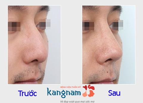 Hình ảnh trước và sau nâng mũi333