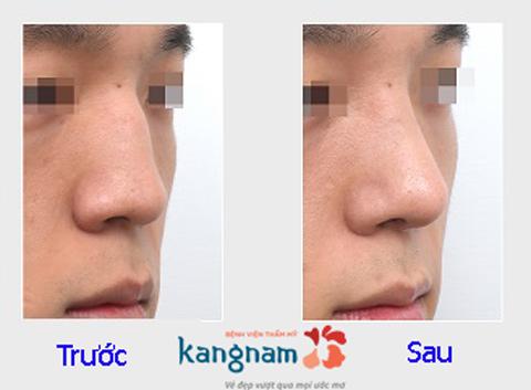 Hình ảnh trước và sau nâng mũi133