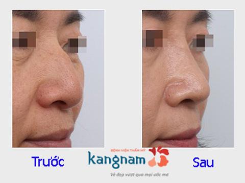Hình ảnh trước và sau nâng mũi4666