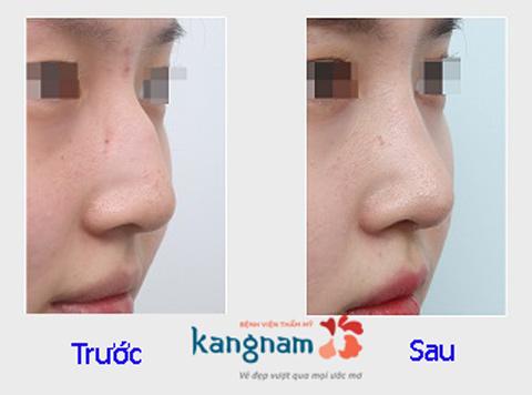 Hình ảnh trước và sau nâng mũi77