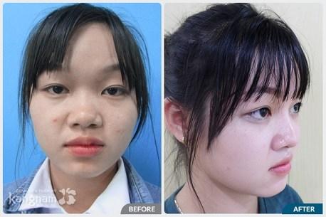 Hình ảnh trước và sau nâng mũi88