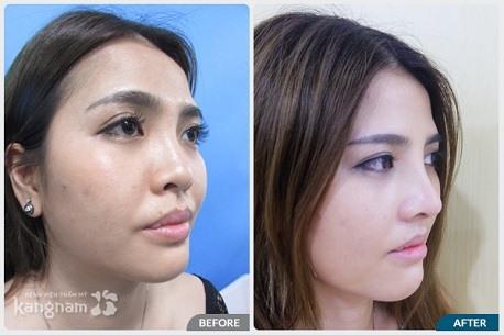 Hình ảnh trước và sau nâng mũi22