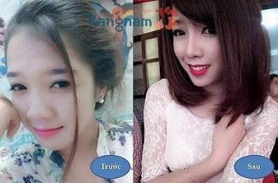 Nâng mũi s line bao nhiêu tiền? trước và sau khi nâng mũi tại thẩm mỹ viện kangnam