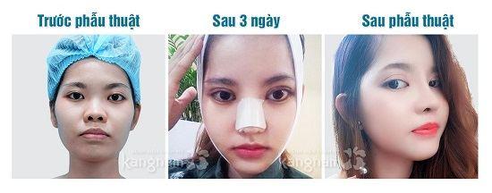 Kết quả nâng mũi sline 3D