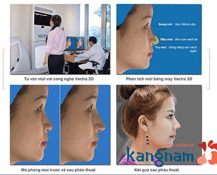 thẩm mỹ viện Kangnam với quy trình thẩm mỹ khép kín