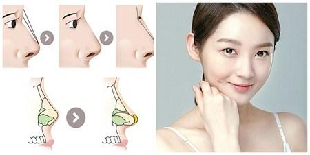 Giá nâng mũi bằng sụn tự thân hết bao nhiêu?