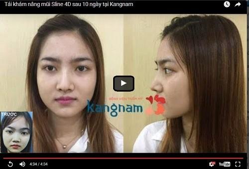 Quy trình thu nhỏ mũi tại Kangnam