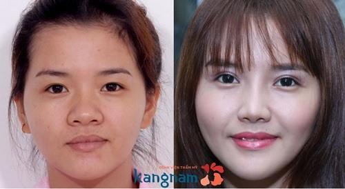 Bảo Trang chia sẻ kết quả thu nhỏ đầu mũi tại Kangnam