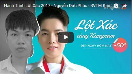 Chiêm ngưỡng sự khác biệt sau nâng mũi L line tại Kangnam