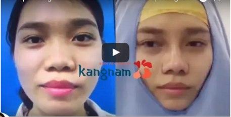 Video cắt cánh mũi nội soi tại BVTN Kangnam