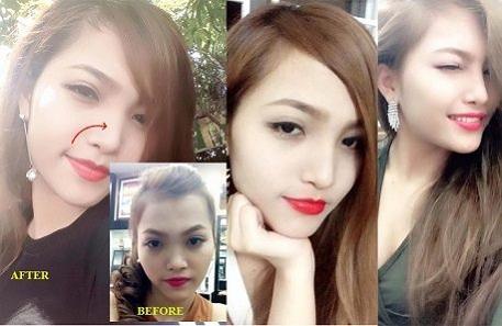 Hình ảnh dáng mũi L line xinh đẹp của khách hàng tại Kangnam