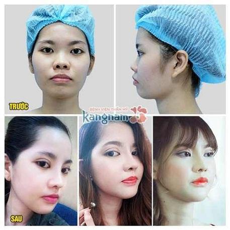 Phẫu thuật nâng mũi L line đem đến sự khác biệt