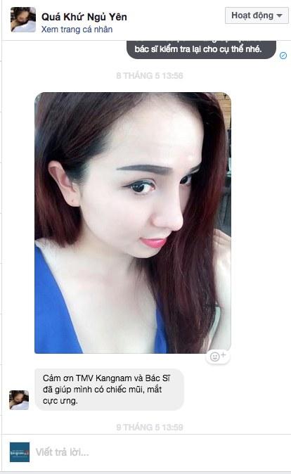 Video nâng mũi tại Kangnam11