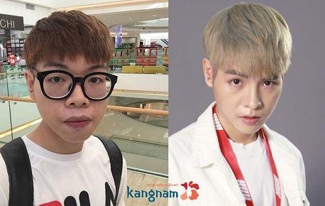 Video Đức Phúc nâng mũi tại Kangnam77