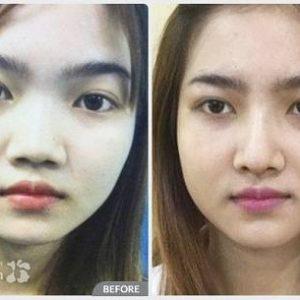 Phẫu thuật nâng mũi bọc sụn ở đâu đẹp tại Hà Nội và TP HCM?