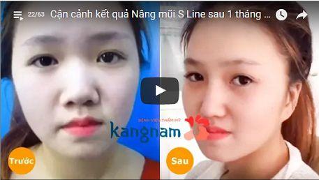 Kiểm chứng nâng mũi bọc sụn ở đâu đẹp tại Kangnam