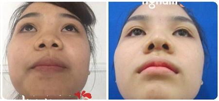 Khách hàng Kangnam chia sẻ kết quả sau thu nhỏ đầu mũi