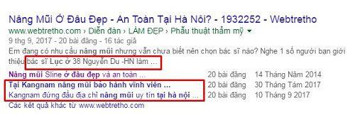 Nâng mũi ở đâu đẹp nhất tại Hà Nội