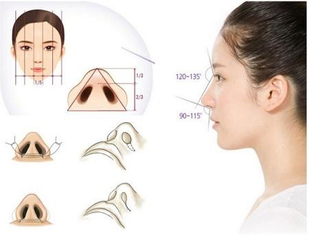 Mô hình giải đáp thu gọn cánh mũi nội soi được thực hiện thế nào?