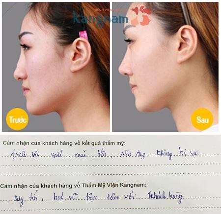 Khách hàng chia sẻ nâng mũi bằng filler có ảnh hưởng gì không?