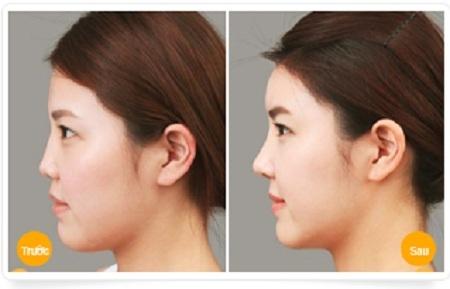 Nâng mũi không phẫu thuật giữ được bao lâu?